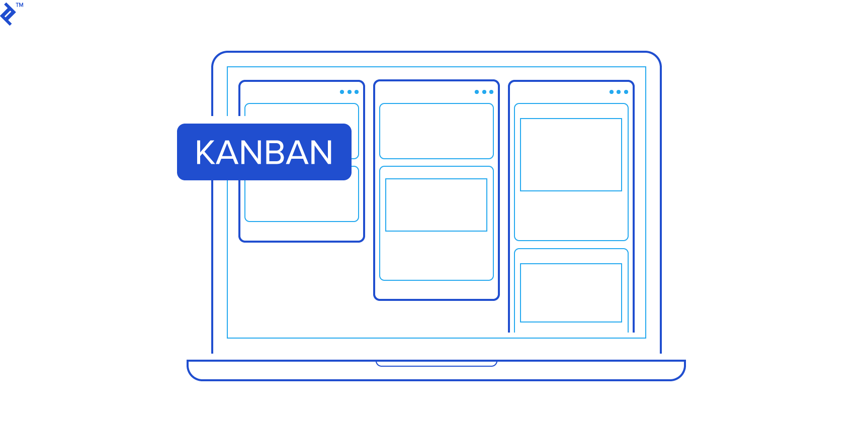 Kanban boards help visualize the workflow.