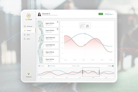 Profusa Sensor  |  Data Portal