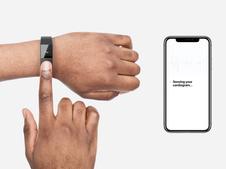 Mawi ECG Wristband